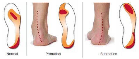 slitasjon under skoene dine kan fortelle om du har problemer med pronasjonen.